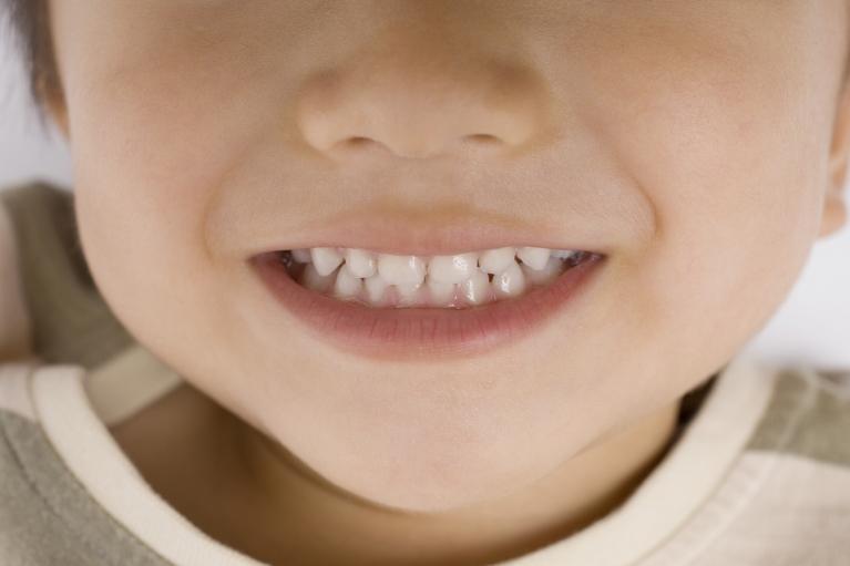 乳歯のむし歯の特徴